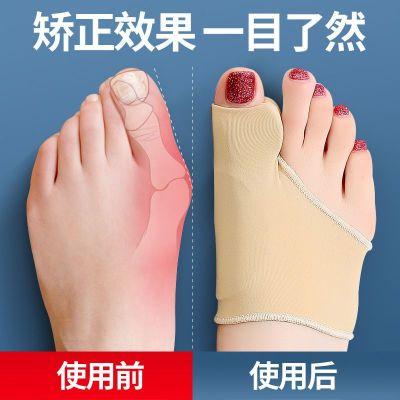 【旗艦同款品質特賣】大腳趾拇指外翻矯正器日夜用成人可穿鞋男女士大腳骨拇外翻分趾器婭洛爾