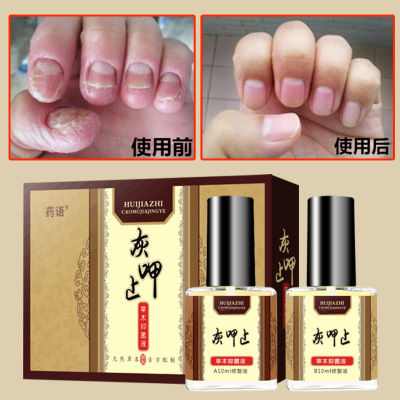 治疗灰指甲专用药冰醋酸灰指甲药水灰甲清去灰指甲专用药灰趾甲厚指甲